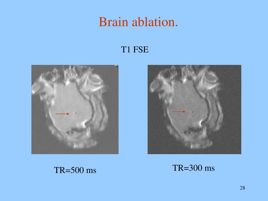 mri guided ultrasound ablation of fibroids